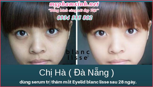 Serum BLANC LISSE Trị Thâm Bọng Mắt